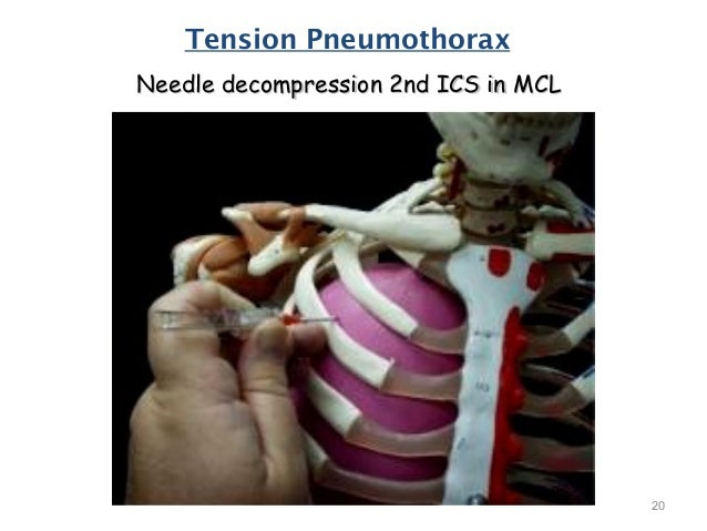 tension pneumothorax needle decompression - 638×479