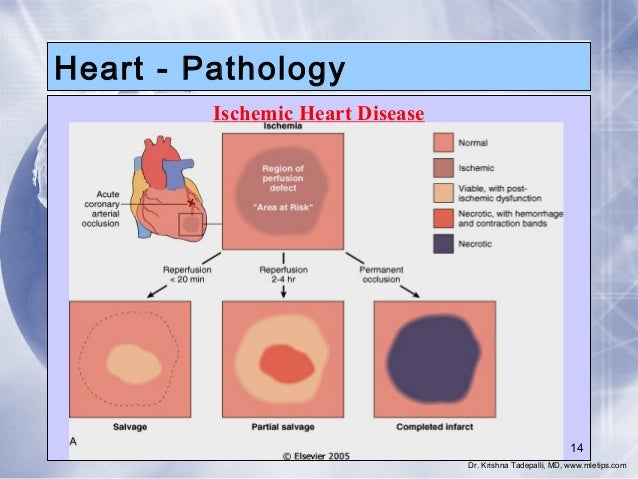 3 Heart Patghology Ischemic Heart Diseases
