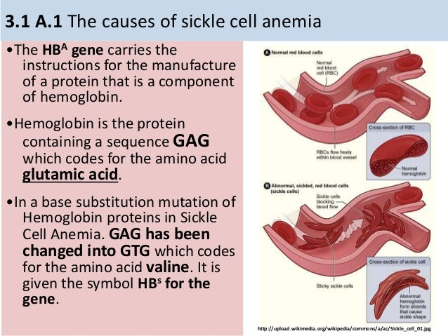 genetic causes of sickle cell anemia Sickle-cell anemia is a blood related disorder that affects the haemoglobin molecule, and causes the entire blood cell to change genetic testing on a small blood.
