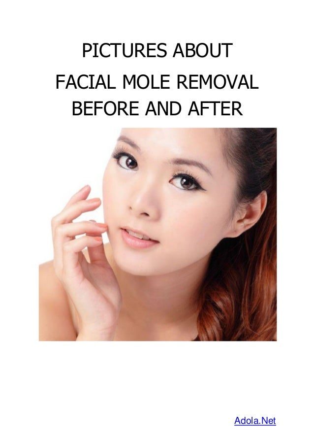 how to get a mole removed