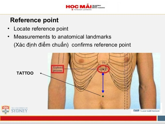 Reference point • Locate reference point • Measurements to anatomical landmarks (Xác định điểm chuẩn) confirms reference p...