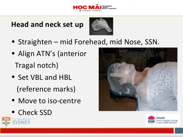 Head and neck set up • Straighten – mid Forehead, mid Nose, SSN. • Align ATN's (anterior Tragal notch) • Set VBL and HBL (...