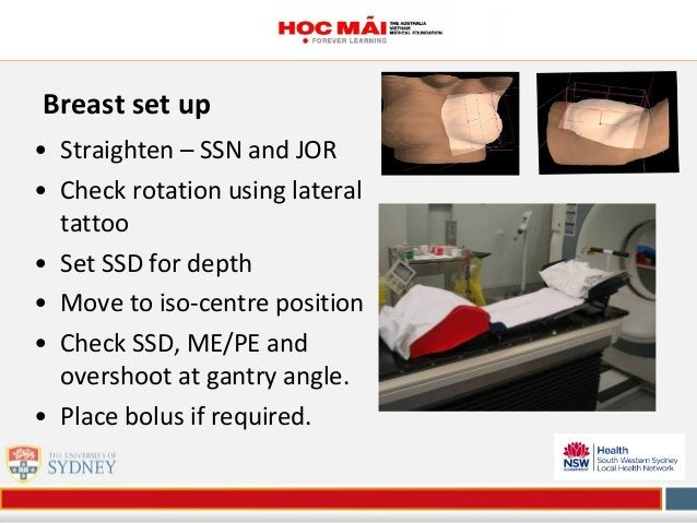 Breast set up • Straighten – SSN and JOR • Check rotation using lateral tattoo • Set SSD for depth • Move to iso-centre po...