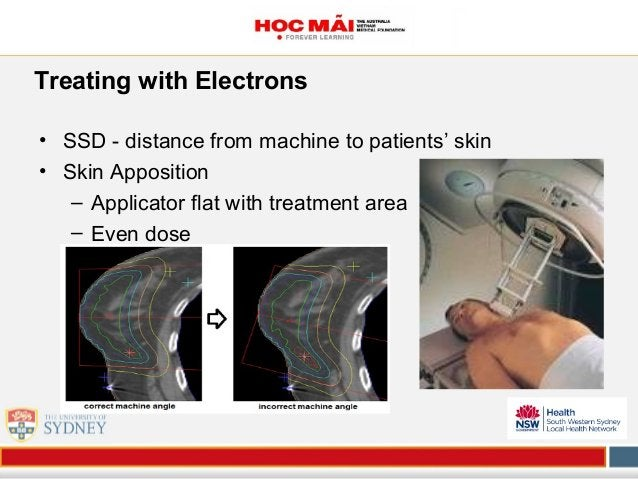 Treating with Electrons • SSD - distance from machine to patients' skin • Skin Apposition – Applicator flat with treatment...