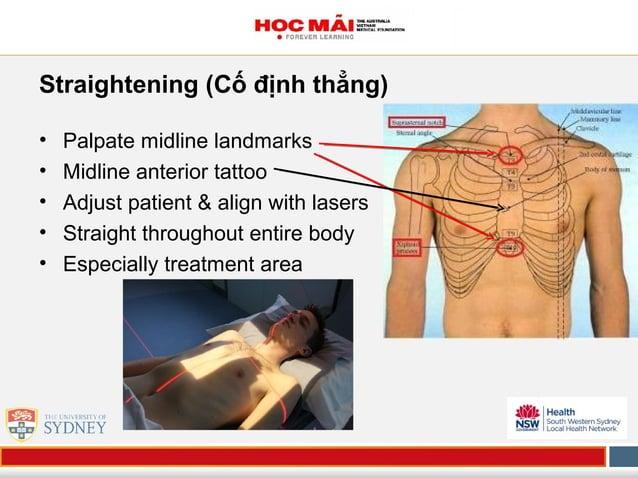 Straightening (Cố định thẳng) • Palpate midline landmarks • Midline anterior tattoo • Adjust patient & align with lasers •...