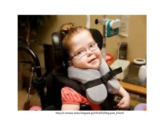 Είμαι απλά ένας άνθρωπος με αναπηρία. http://www.idrimakofon.gr/?p=574