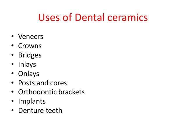 History Of Dental Ceramics