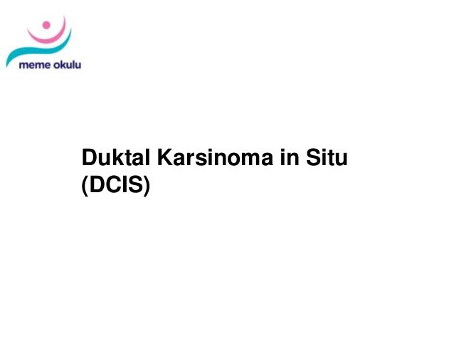 Diagnosis and Treatment of Patients with Primary and Metastatic Breast Cancer Duktal Karsinoma in Situ (DCIS)