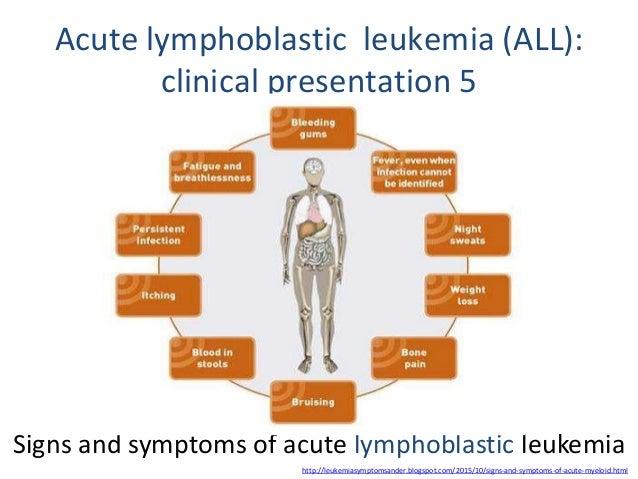 Leukemia Acute Lymphoblastic Leukemia Symptoms