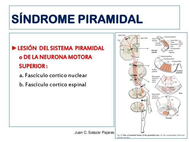 Síndrome De Motoneurona Superior - SoftwareMac