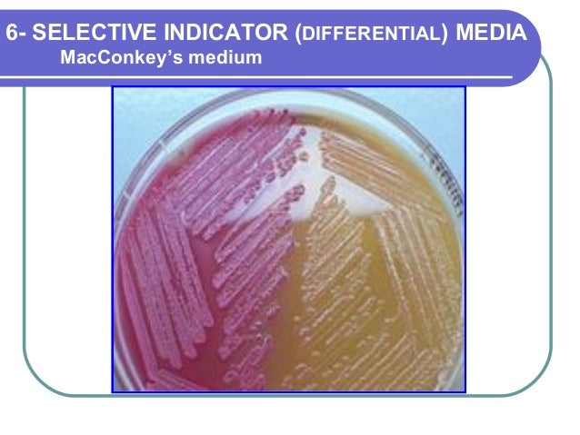 selective differential media Blood agar is one type of differential medium some differential media are also selective, ie, most of the standard enteric agars such as macconkey and emb.