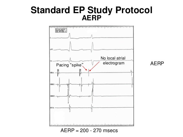 Conventional and dedicated atrial overdrive pacing for the ...