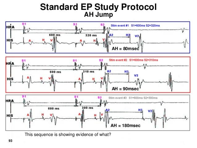 Electrophysiology Procedure | Patient Education | UCSF ...