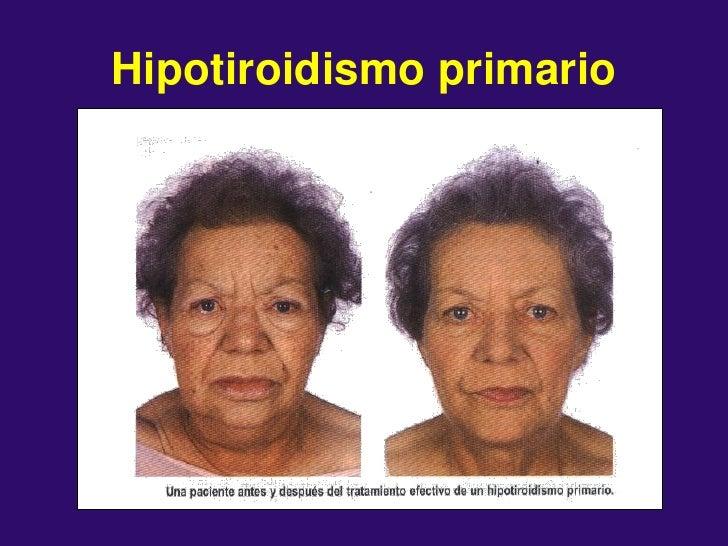 3 Hormonas Tiroideas Sexuales 2012