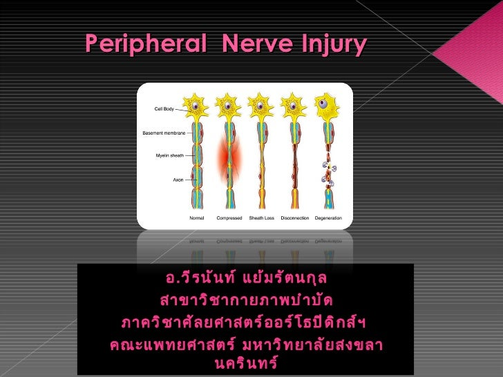 Peripheral  Nerve Injury <ul><li>อ . วีรนันท์ แย้มรัตนกุล </li></ul><ul><li>สาขาวิชากายภาพบำบัด </li></ul><ul><li>ภาควิชาศ...