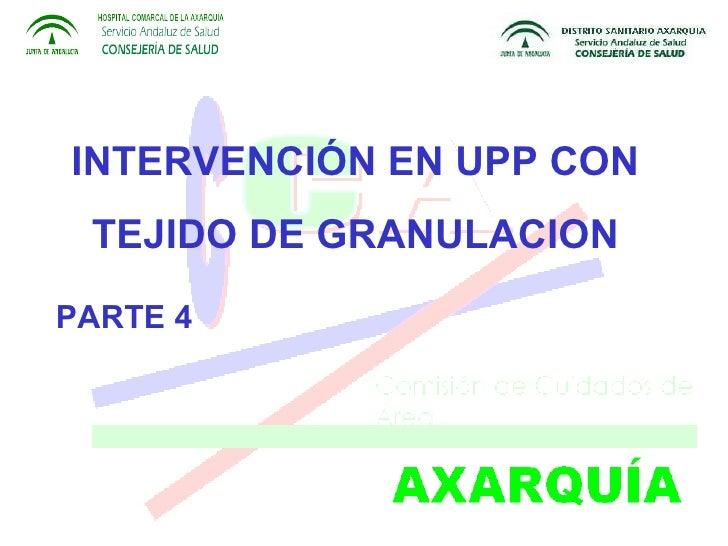 INTERVENCIÓN EN UPP CON TEJIDO DE GRANULACION PARTE 4