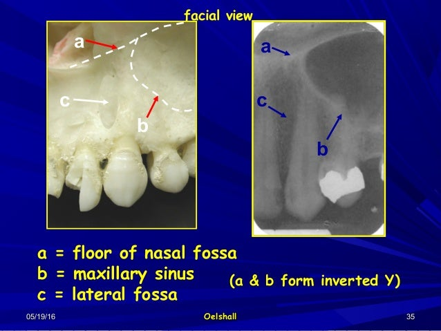 3 radio anatomy interpert i for Floor of nasal cavity