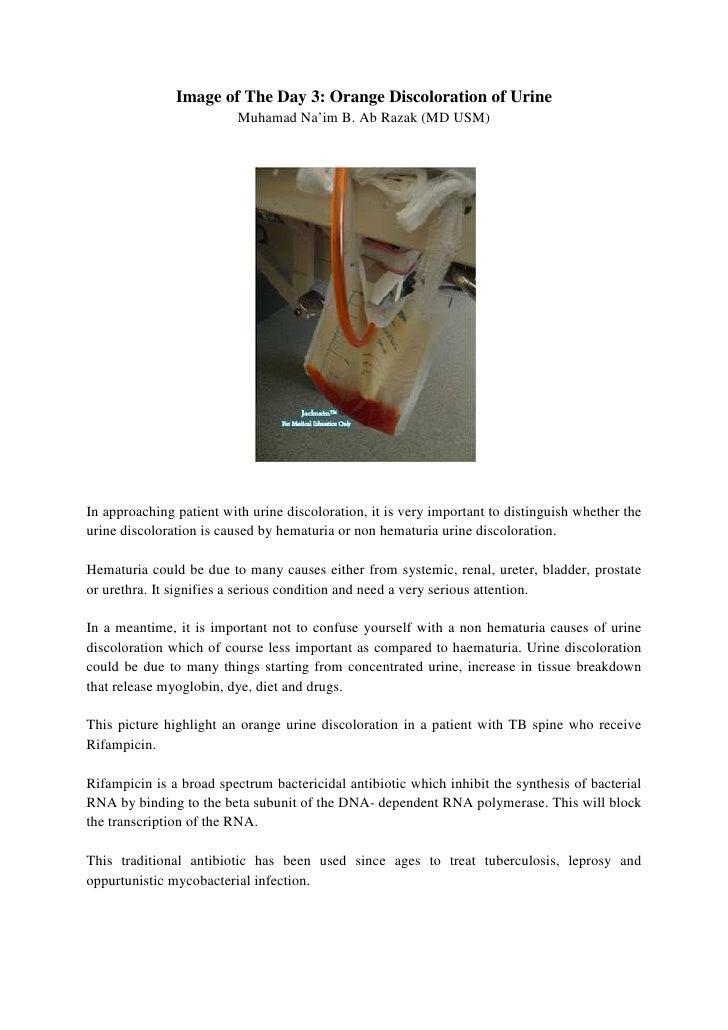 Image of The Day 3: Orange Discoloration of Urine                          Muhamad Na'im B. Ab Razak (MD USM)In approachin...