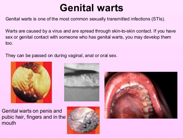 Having sex with my vaginal warts