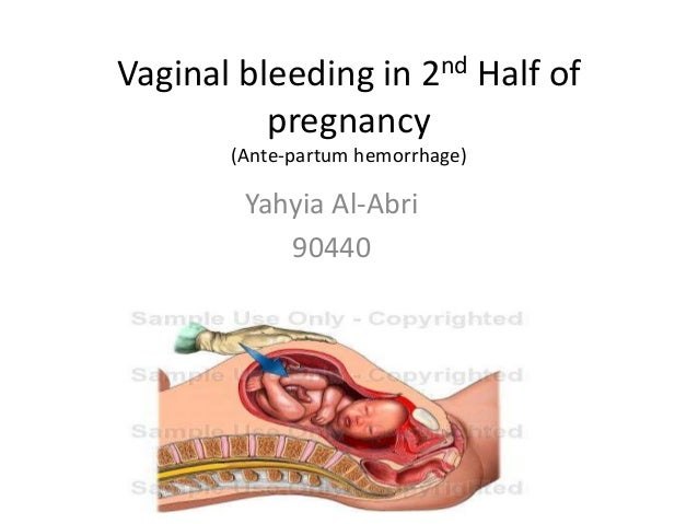 Bleeding from the vagina during pregnancy