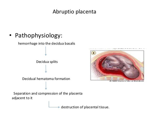 Approach To Patient Vaginal Bleeding In 2nd Half Of Pregnancy