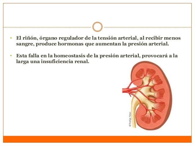 Cómo se produce la estenosis renal? • La causa más frecuente de esta situación es la presencia de ateroesclerosis o aterom...