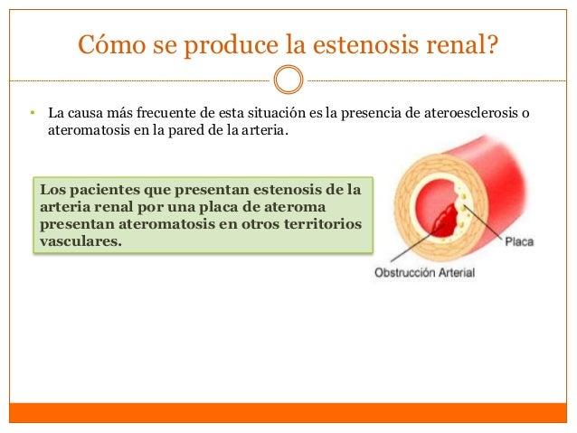 Mecanismo • Mecanismo por el cual la estenosis de la arteria renal conlleva una hipertensión arterial es el siguiente: el ...