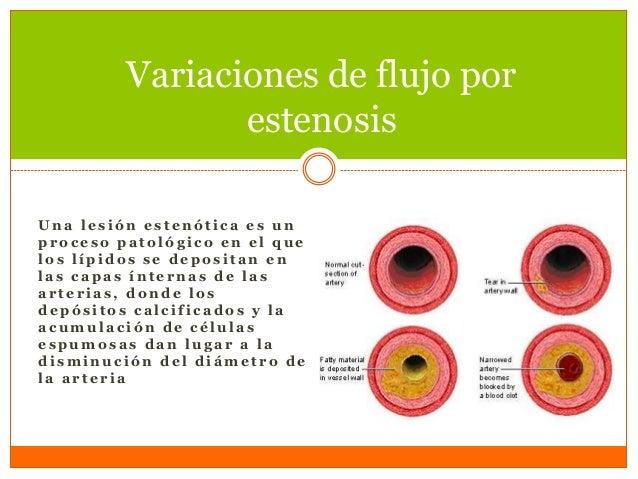  La sangre es un fluido que consiste de células y plasma. La viscosidad de la sangre este relacionado con le porcentaje d...