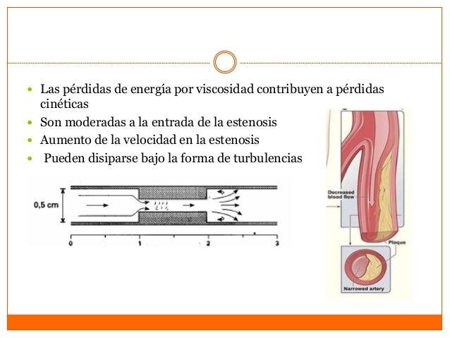 Antecedentes • tabaquismo • VLDL elevado • diabetes mellitus tipo II • cateterismo. • DIAGNÓSTICO FINAL: • •PROCEDIMIENTOS...