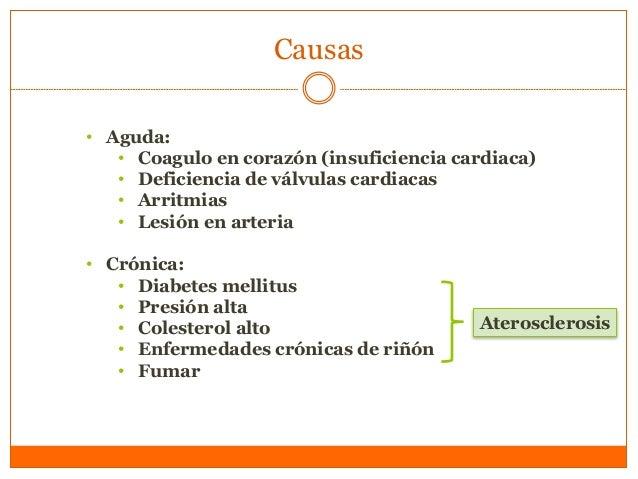 Causas • Aguda: • Coagulo en corazón (insuficiencia cardiaca) • Deficiencia de válvulas cardiacas • Arritmias • Lesión en ...