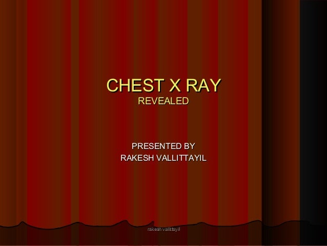 CHEST X RAYCHEST X RAY REVEALEDREVEALED PRESENTED BYPRESENTED BY RAKESH VALLITTAYILRAKESH VALLITTAYIL rakesh vallittayilra...