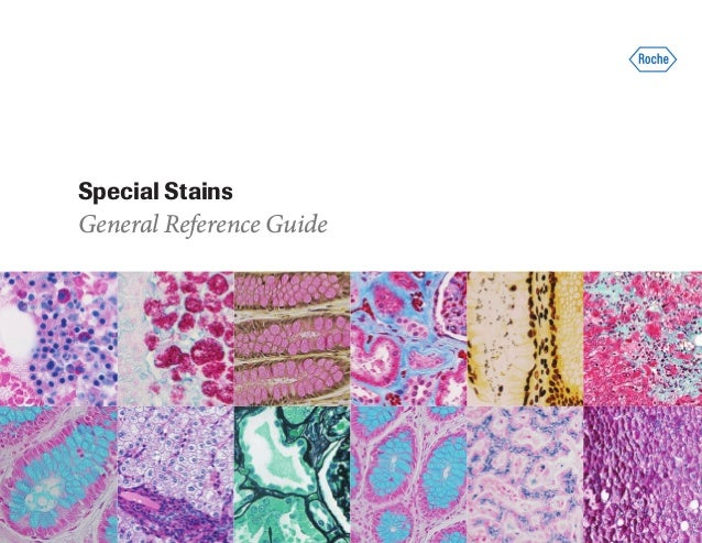 Special Stains General Reference Guide