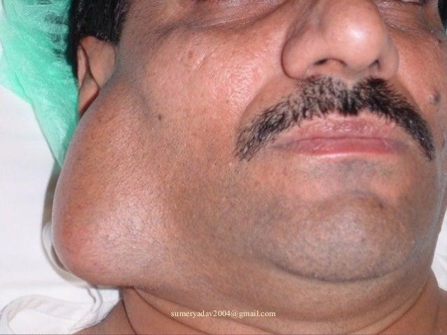salivary gland neoplasm Slide 3