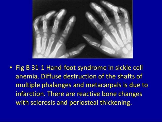 31 dactylitis