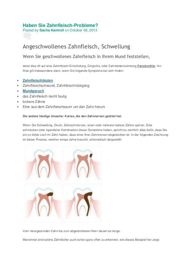 Haben Sie Zahnfleisch Zahnfleisch-Probleme? Posted by Sacha Karmoll on October 09, 2013  Angeschwollenes Zahnfleisch, Schw...