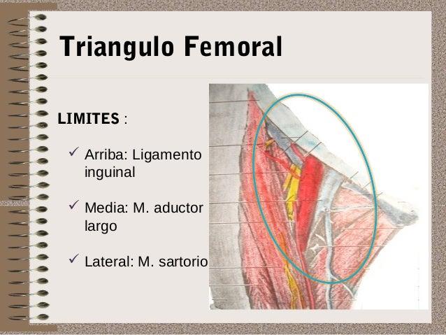 Hernia inguinal y femoral