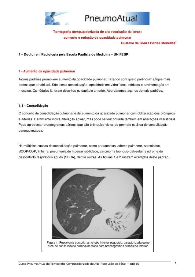 Tomografia computadorizada de alta resolução do tórax:  aumento e redução da opacidade pulmonar  Gustavo de Souza Portes M...