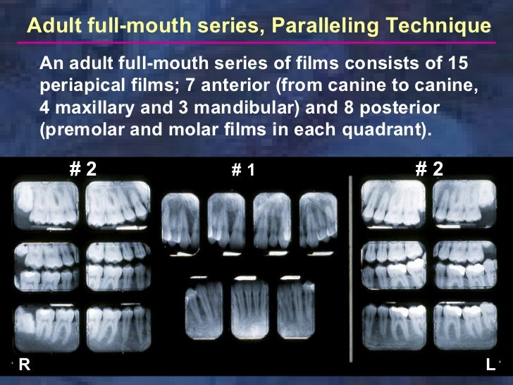 Radiologyparallelingtechnique. Wiring. Mouth Diagram Labeled Radiograph At Scoala.co