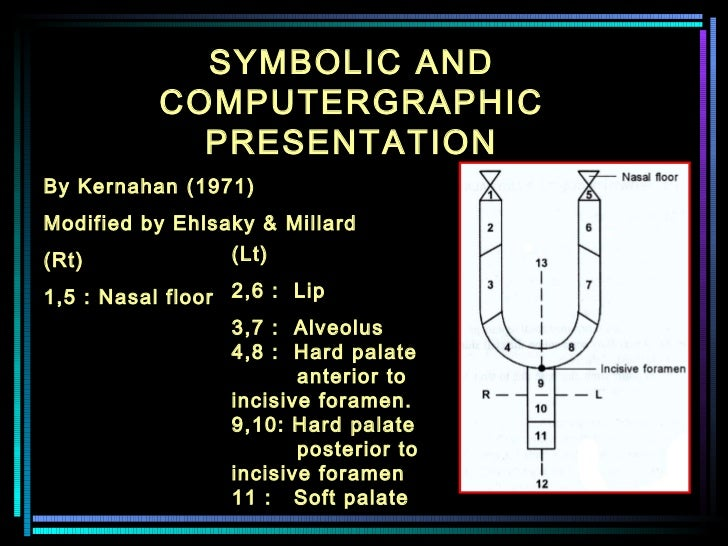 SYMBOLIC AND COMPUTERGRAPHIC PRESENTATION By Kernahan (1971)  Modified by Ehlsaky & Millard (Rt)    1,5 : Nasal floor  (Lt...