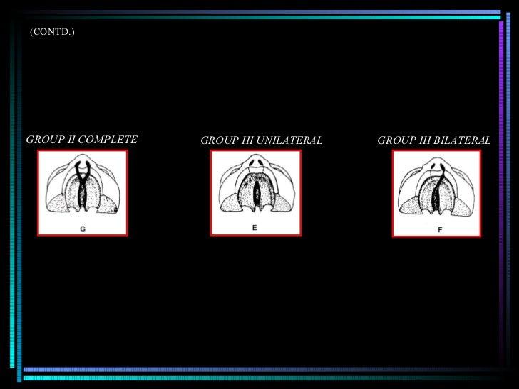 (CONTD.) GROUP II COMPLETE GROUP III UNILATERAL GROUP III BILATERAL