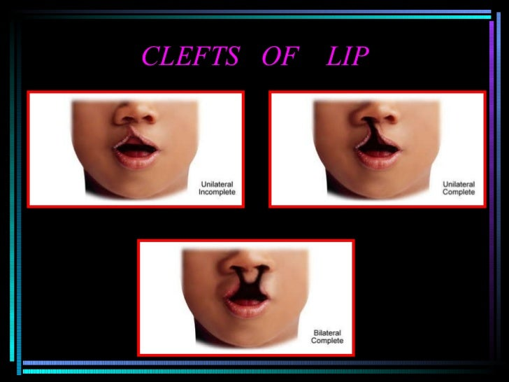 CLEFTS  OF  LIP