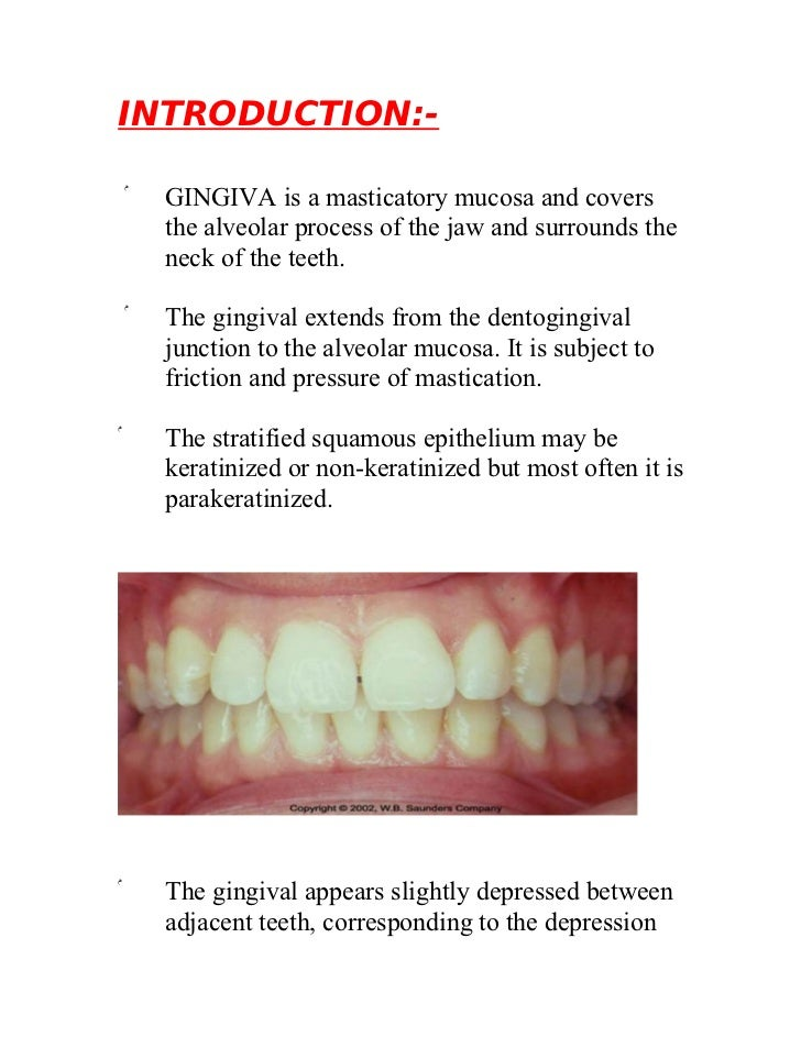 INTRODUCTION:-    ۞   GINGIVA is a masticatory mucosa and covers        the alveolar process of the jaw and surrounds the ...