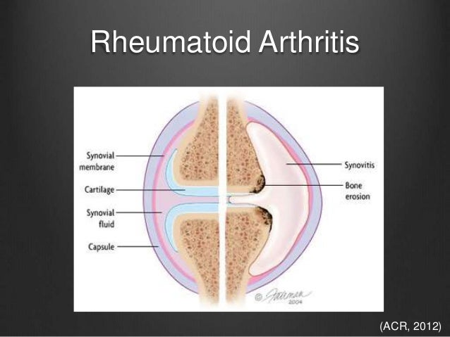acr guidelines steroid induced osteoporosis