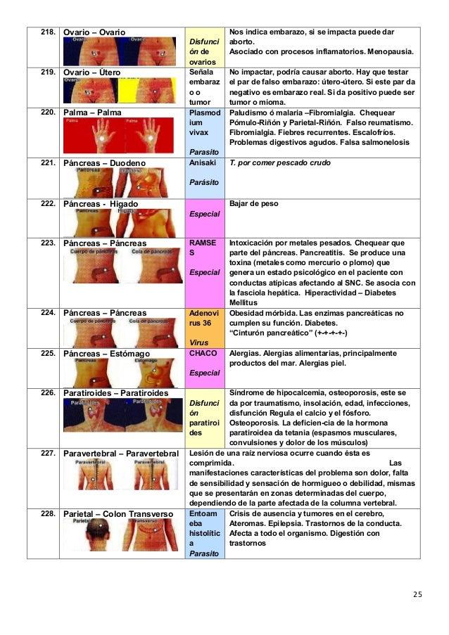 El tratamiento a la osteocondrosis lumbar