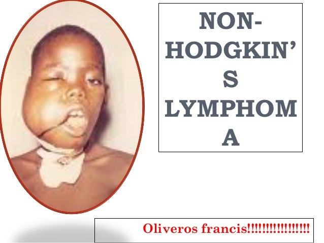 non hodgkin lymphoma in children In children, non-hodgkin's lymphoma can occur from infancy to teenage years its peak incidence is between ages seven and eleven years boys are affected more than girls.