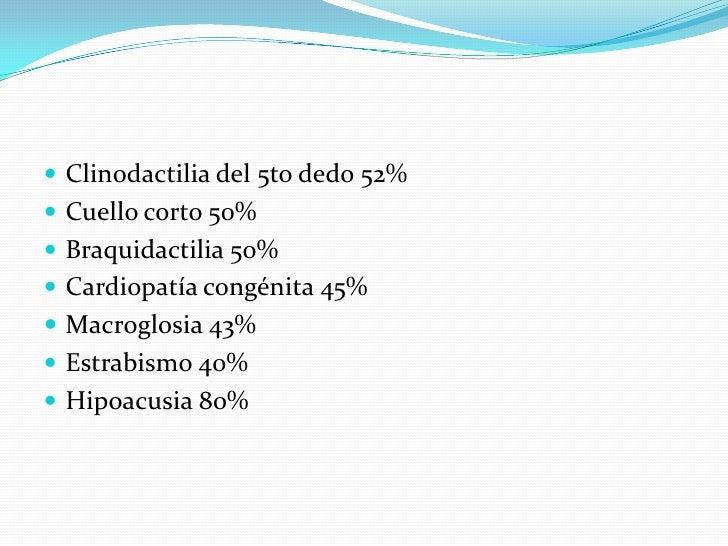 Clinodactilia del 5to dedo 52%<br />Cuello corto 50%<br />Braquidactilia 50%<br />Cardiopatía congénita 45%<br />Macroglos...