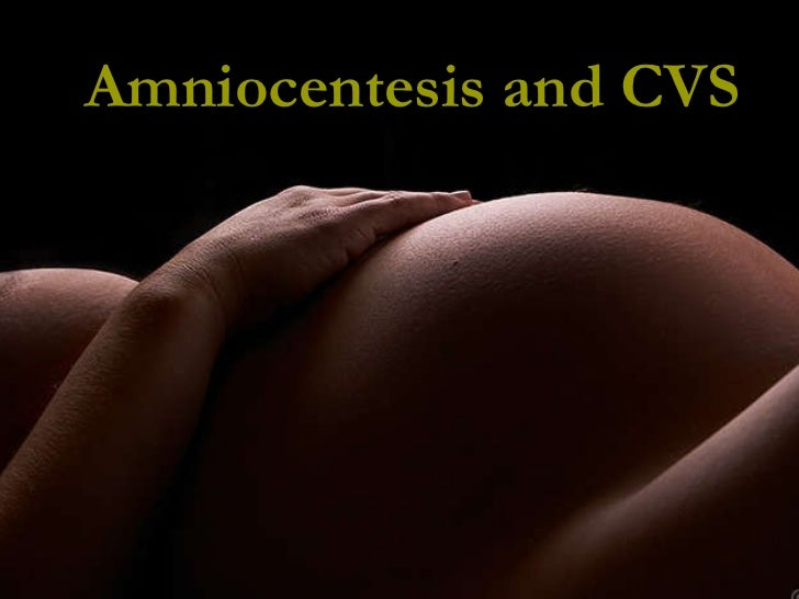 Amniocentesis and CVS