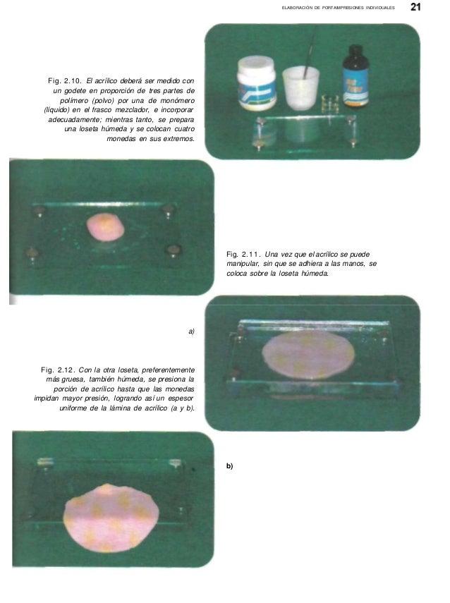 37975372 prostodoncia-total-ruben-bernal-arciniega-1 ed-1999
