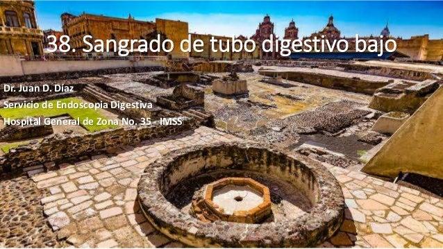 38. Sangrado de tubo digestivo bajo Dr. Juan D. Díaz Servicio de Endoscopia Digestiva Hospital General de Zona No. 35 - IM...