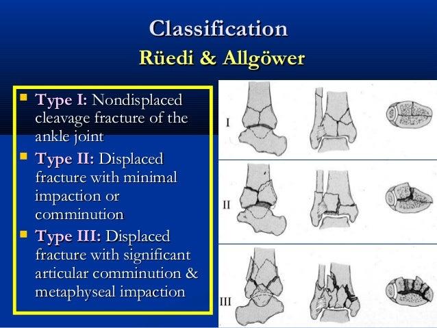 39 tibial plafond pilon fractures - Tibial plafond fracture classification ...